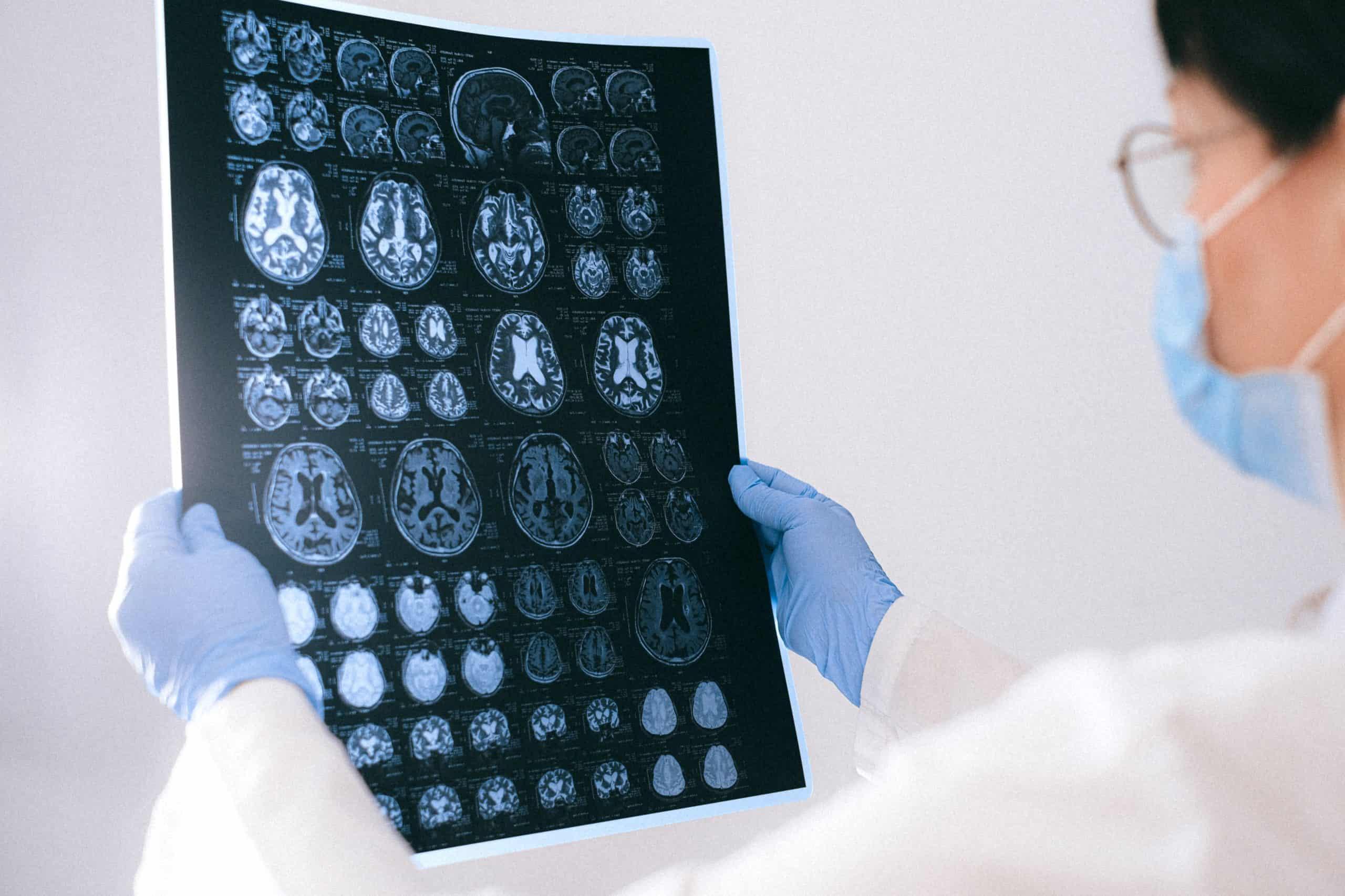 Best Neuropsychology course tutorial class certification training online